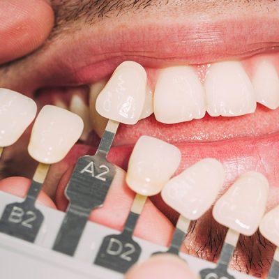 Zahnarzt vergleicht Veneers mit natürlicher Zahnfarbe