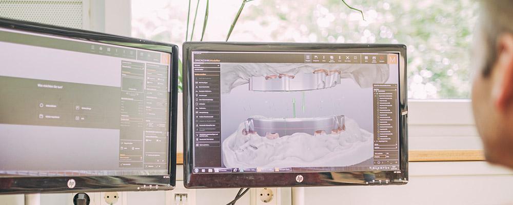 Mitarbeiter plant Implantation am Computer